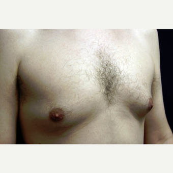 31 year old man treated for gynecomastia with liposuction before 3419136