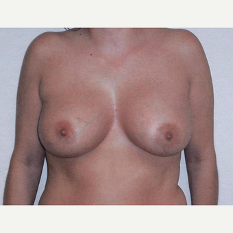 Breast Augmentation after 3560662