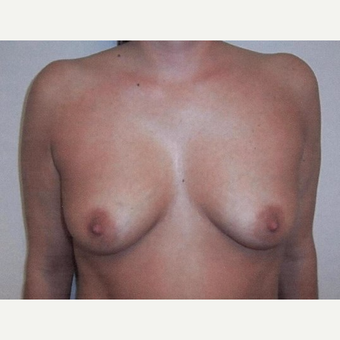 Breast Augmentation before 3560662