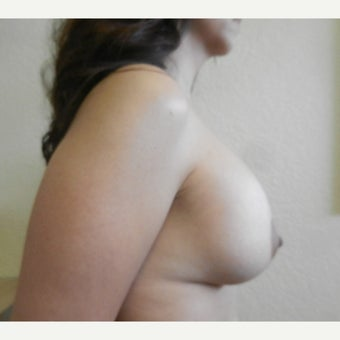 35-44 year old woman treated with Mentor Breast Implants after 2596251