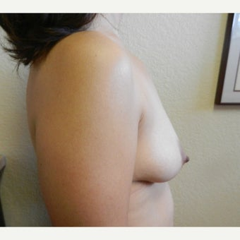 35-44 year old woman treated with Mentor Breast Implants before 2596251