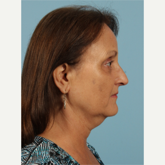 55-64 year old woman treated with Kybella before 3446486