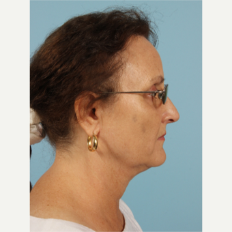 55-64 year old woman treated with Kybella after 3446486