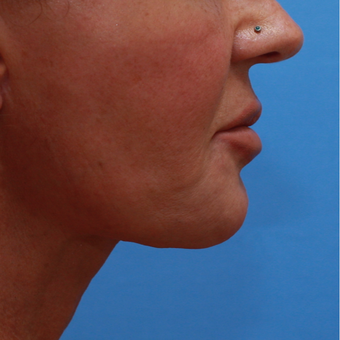55-64 year old lady treated with Chin Implant after 3373023