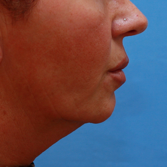55-64 year old lady treated with Chin Implant before 3373023