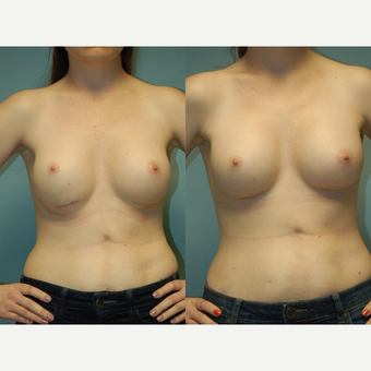 29 y/o Woman, 30 days post Correction of Inferior Implant Malposition before 3067251
