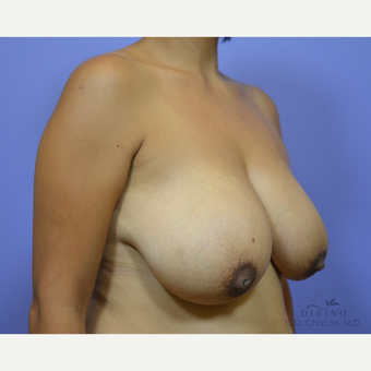 35-44 year old woman treated with Breast Lift before 3386503