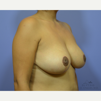 35-44 year old woman treated with Breast Lift after 3386503