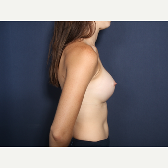 18-24 year old woman treated with Breast Augmentation (view 2 of2) after 3305669