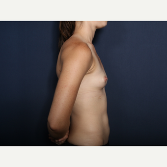 18-24 year old woman treated with Breast Augmentation (view 2 of2) before 3305669