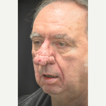 71-year old man who had Debulking of Rhinophyma before 3659688