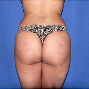25-34 year old woman treated with Brazilian Butt Lift after 3002338