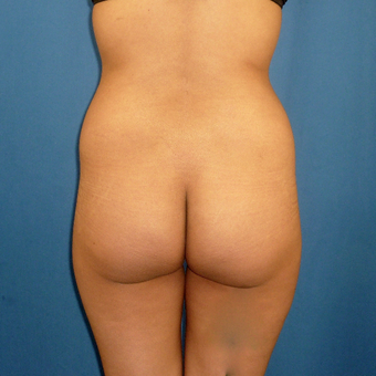 25-34 year old woman treated with Brazilian Butt Lift before 3002338