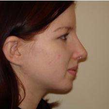 25-34 year old woman treated with Rhinoplasty after 3506042