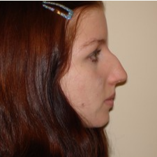 25-34 year old woman treated with Rhinoplasty before 3506042