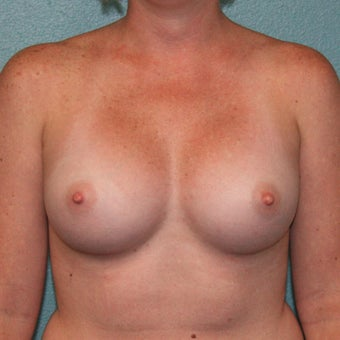 25-34 year old woman treated with Mentor Breast Implants, MemoryShape Gummy Bear Anatomic after 2335536
