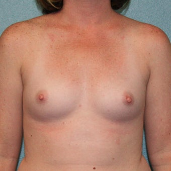 25-34 year old woman treated with Mentor Breast Implants, MemoryShape Gummy Bear Anatomic before 2335536