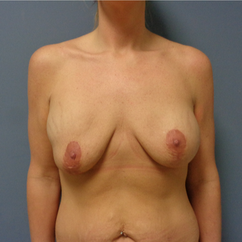 35-44 year old woman treated with Mommy Makeover before 3493198