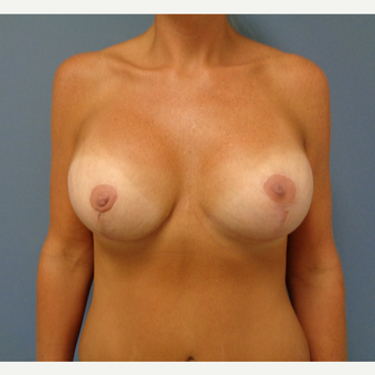 35-44 year old woman treated with Mommy Makeover after 3493198