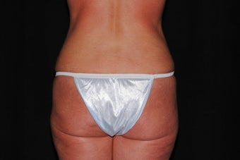 51 year-old active healthy woman seeking liposuction