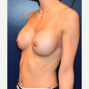 25-34 year old woman treated with Breast Augmentation after 3013620