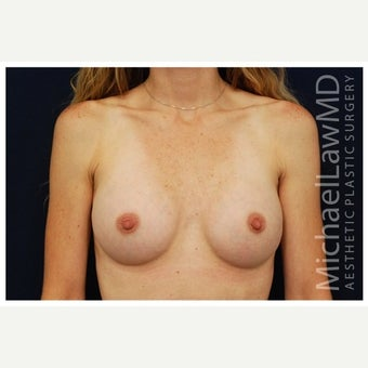 25-34 year old woman treated with Inspira Breast Implants after 1860175