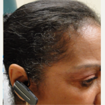 45-54 year old african american female treated with PRP for Hair Loss after 3195546
