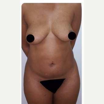 25-34 year old woman treated with Brazilian Butt Lift before 3706757