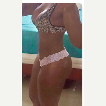 25-34 year old woman treated with Brazilian Butt Lift after 3706757