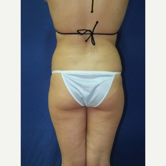 35-44 year old woman treated with Brazilian Butt Lift Brazilian Butt Lift