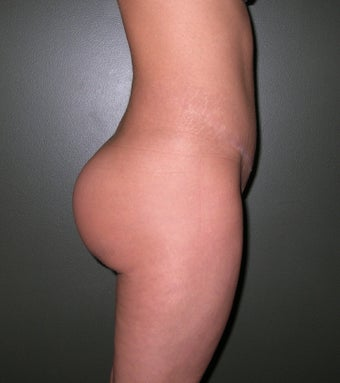 Buttock Augmentation with Implants after 1208131