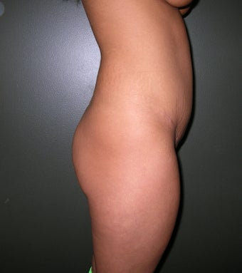 Buttock Augmentation with Implants before 1208131