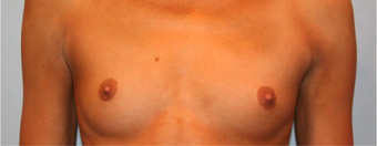 25-34 year old woman treated with Breast Augmentation before 3319061