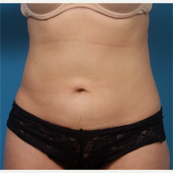 Liposculpture after 3340329