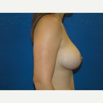 Breast Augmentation with 425 cc Silicone Implants after 3447646