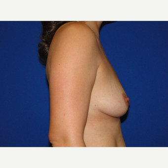 Breast Augmentation with 425 cc Silicone Implants before 3447646