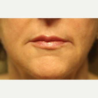 55-64 year old woman treated with Restylane after 2174061