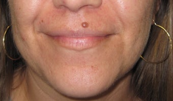 Mole Removal of Lip Using Plastic Surgery Techniques
