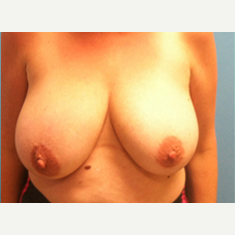 Breast Lift before 3278923