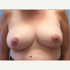 Breast Lift after 3278923