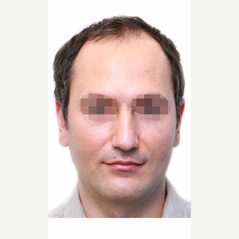 35-44 year old man treated with Hair Transplant before 3280162