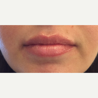 25-34 year old woman treated with Juvederm after 3762709