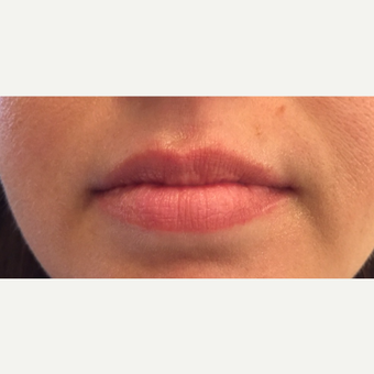 25-34 year old woman treated with Juvederm before 3762709