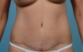 35-44 year old woman treated with Tummy Tuck after 3089262