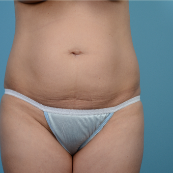 35-44 year old woman treated with Tummy Tuck before 3089262