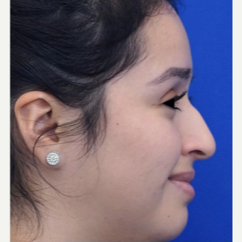 25-34 year old woman treated with Non Surgical Nose Job before 3711512