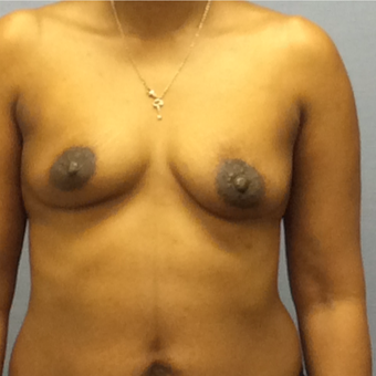 35-44 year old woman treated with Breast Augmentation before 3147547
