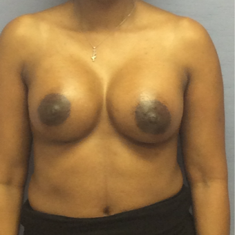 35-44 year old woman treated with Breast Augmentation after 3147547