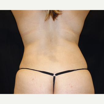 25-34 year old woman treated with Smart Lipo after 3345874