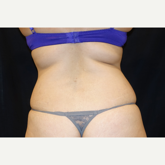 25-34 year old woman treated with Smart Lipo before 3345874